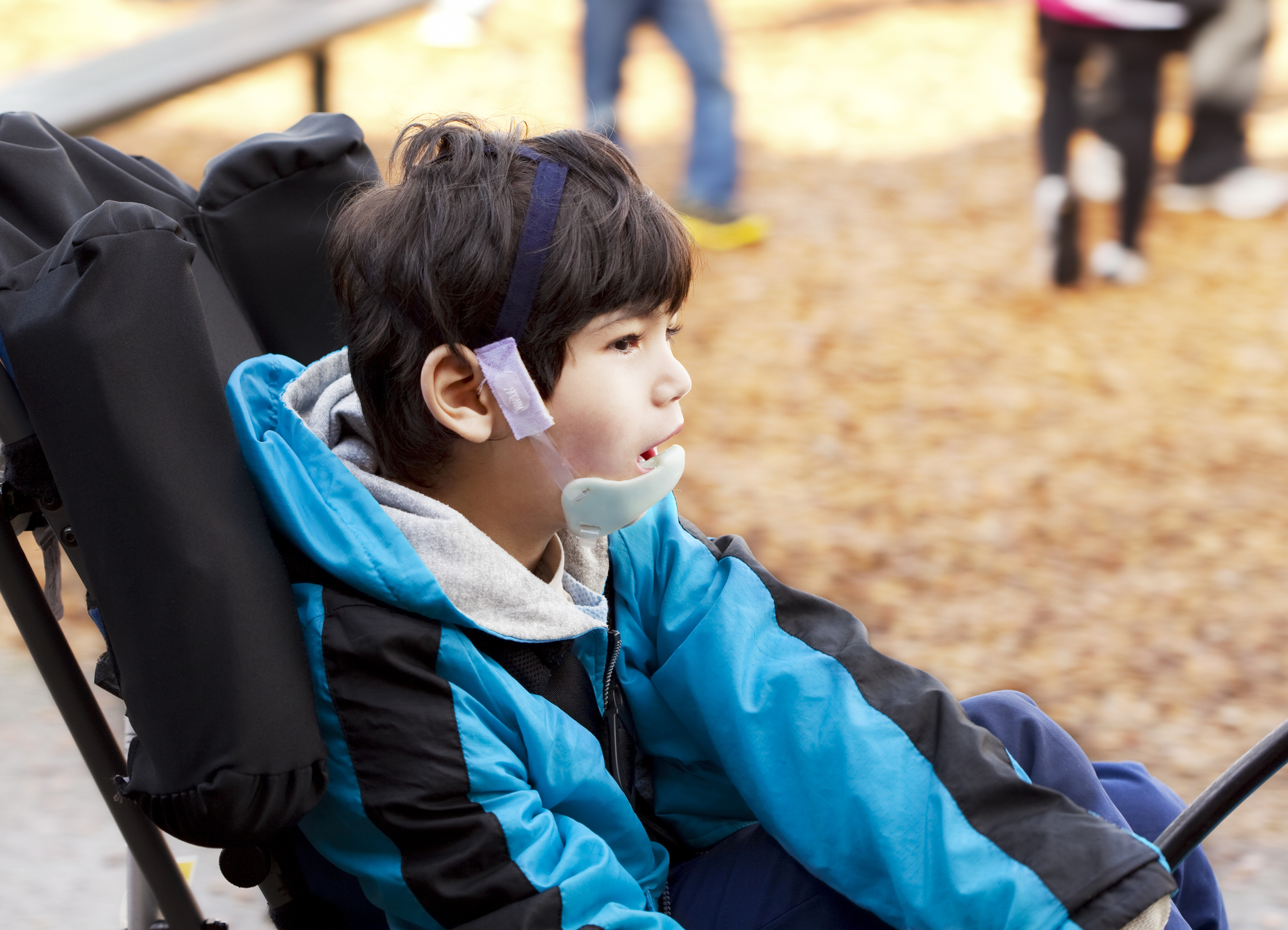 oregon birth injury lawyers know the causes of cerebral palsy dystonic cerebral palsy